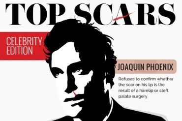 12 Celebrity Scars and How They Got Them