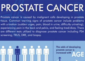24 Incredible Prostate Cancer Demographics
