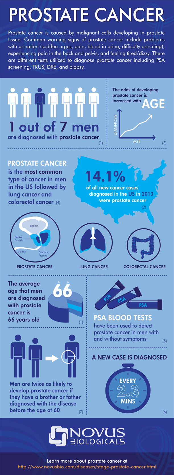 facts about prostate cancer Overview & facts cancer of the prostate, a gland in the male reproductive system, is a major health concern for american men the disease is rare before age 50, and experts believe most elderly.