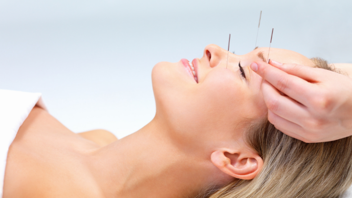 101 Best Acupuncture Clinic and Business Names